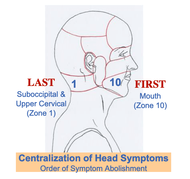 centralizations of head smptoms american headache institute