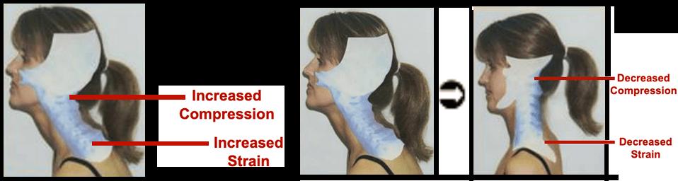 prep-american-headache-instutute-2